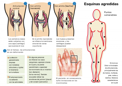 Esquinas agredidas | Infografía | Diario El Nacional
