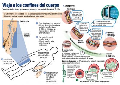 Viaje a los confines del cuerpo | Infografía | Diario El Nacional